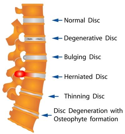 disc - disease